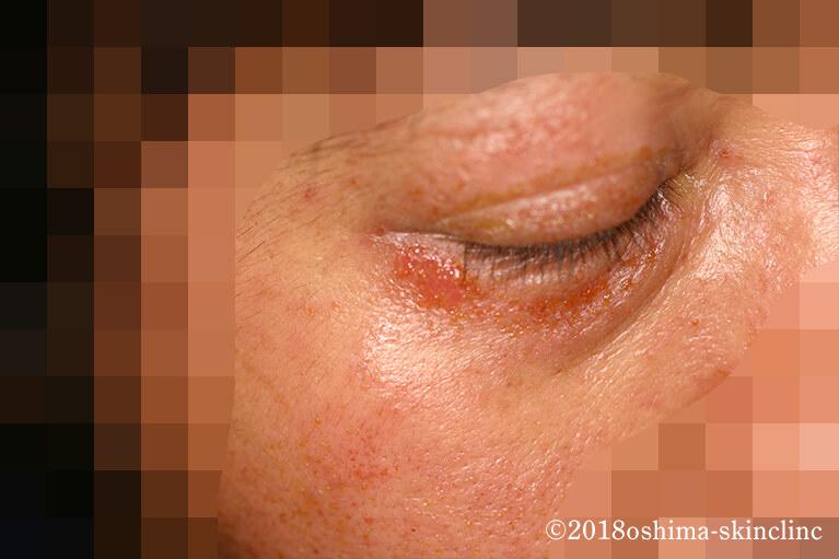 伝染性膿痂疹