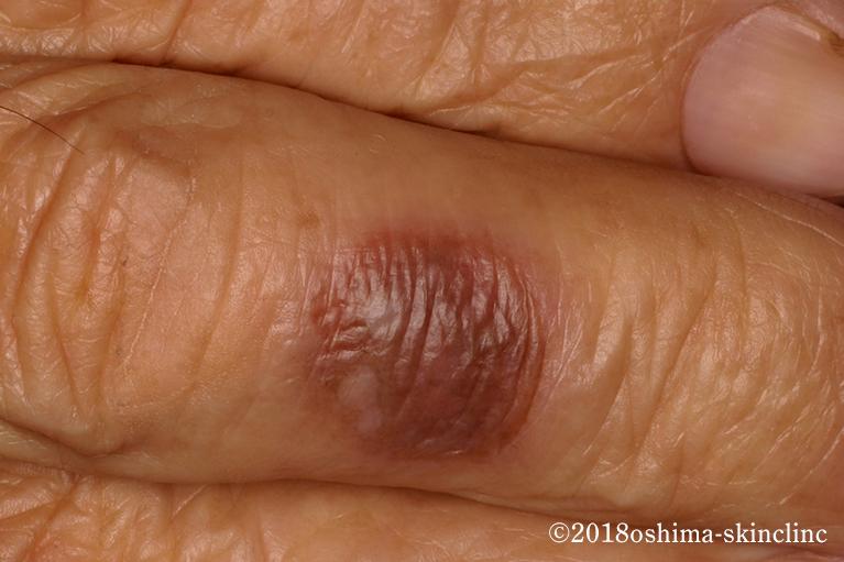 多発性固定薬疹