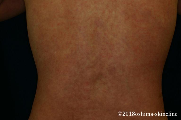 DM/皮膚筋炎