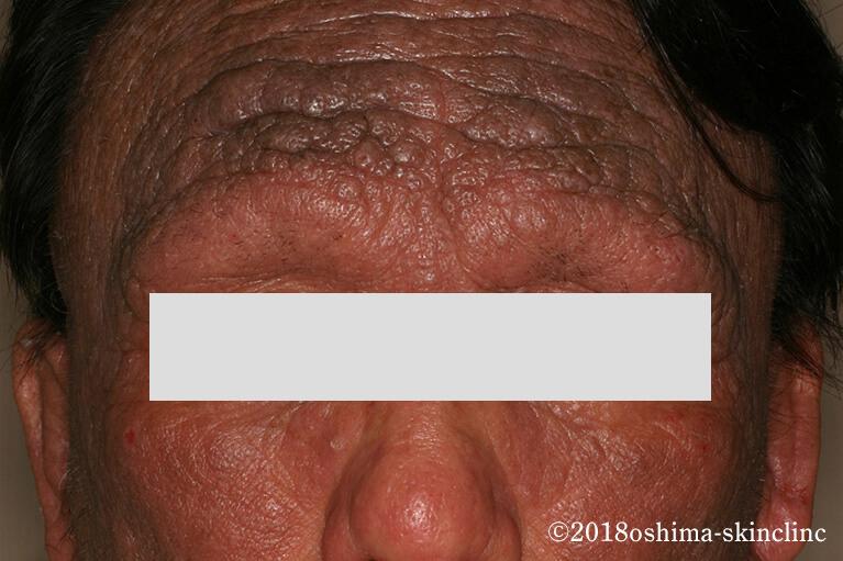 皮膚 掻痒 症