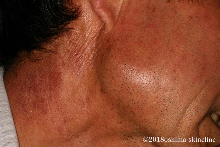 光線過敏性皮膚炎